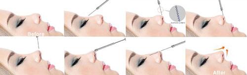 Phẫu thuật nâng mũi bằng silicone dẻo tại Hải Phòng